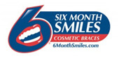 Six Month Smiles San Jose - Cosmatic Braces