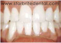Fast Braces San Jose - Full Orthodontic Treatment After
