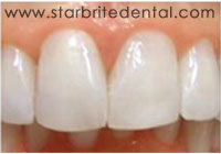 Fast Braces San Jose - Cosmetic Orthodontic Treatment After