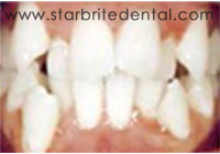 Fast Braces San Jose - Full Orthodontic Treatment Before