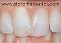 Fast Braces San Jose - Cosmetic Orthodontic Treatment Before