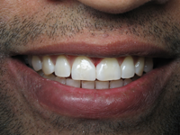 Porcelain Veneers San Jose - After