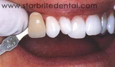 Smile Gallery Fremont - After Case 03