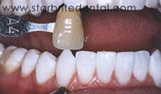 Smile Gallery Fremont - After Case 05
