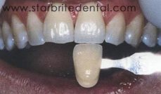 Teeth Whitening Before/After San Jose - Before 1