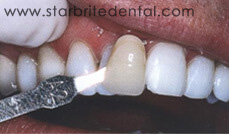 Teeth Whitening Before/After San Jose - Before 5