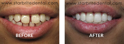 Braces Before After Case 01