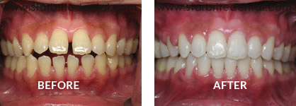 Braces Before After Case 07