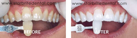 Teeth Whitening Before After Case 06