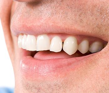 Dr Munira Lokhandwala, Starbrite Dental, Providing affordable dental veneers