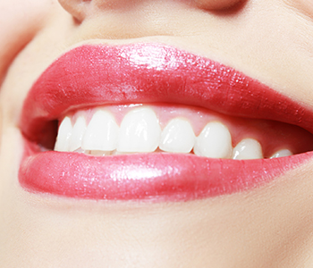 Dr Munira Lokhandwala, Starbrite Dental, Providing Best Home Teeth whitening