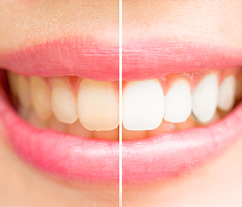 Dr Munira Lokhandwala, Starbrite Dental, Providing Best Teeth Whitening System