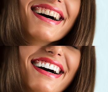 Dr Munira Lokhandwala, Starbrite Dental, Providing Center Of Cosmetic Dentistry