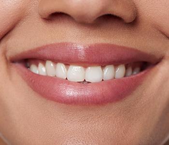 Dr Munira Lokhandwala, Starbrite Dental, Providing Cosmetic Dentistry