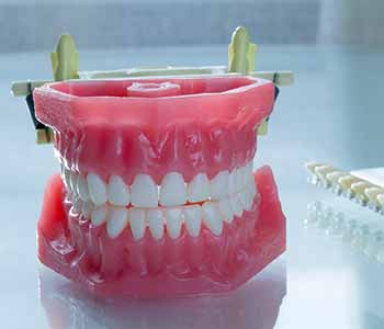 Dr Munira Lokhandwala, Starbrite Dental, Providing cost of dental implants