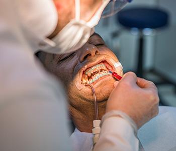 Dr Munira Lokhandwala, Starbrite Dental, Providing dental veneers