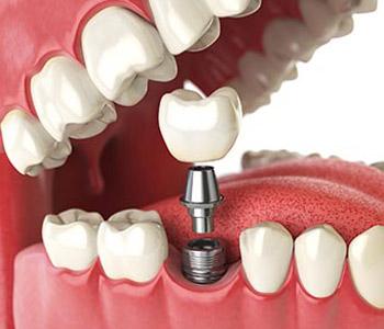 Dr Munira Lokhandwala, Starbrite Dental, Providing full dental implants
