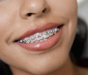 Dr Munira Lokhandwala, Starbrite Dental, Invisalign Before and After Service