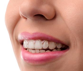 Dr Munira Lokhandwala, Starbrite Dental, Dental medical care. Invisible braces. Silicone trainer