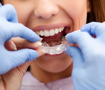 Dr Munira Lokhandwala, Starbrite Dental, Providing Invisible Braces