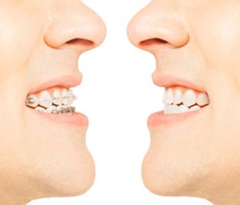Dr Munira Lokhandwala, Starbrite Dental, Providing invisalign in fremont