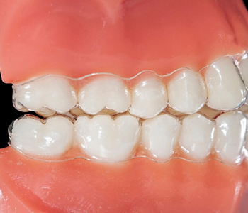 Dr Munira Lokhandwala, Starbrite Dental, Providing Invisalign