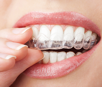 Dr Munira Lokhandwala, Starbrite Dental, Providing Teeth whith white tray