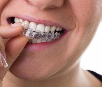 Dr Munira Lokhandwala, Starbrite Dental, Providing Invisalign treatment