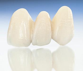Dr Munira Lokhandwala, Starbrite Dental, Providing porcelain Veneers in Fremont