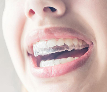 Dr Munira Lokhandwala, Starbrite Dental, Providing Invisalign in san jose
