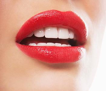 Dr Munira Lokhandwala, Starbrite Dental, Providing Tooth veneers san jose area