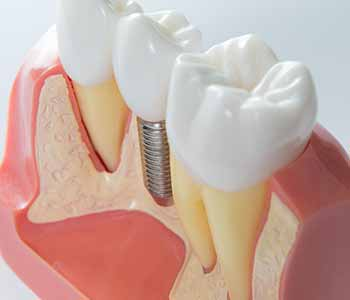 Dr. Munira Lokhandwala at StarBrite Dental explains how to use dental implants to retain dentures for San Jose area patients