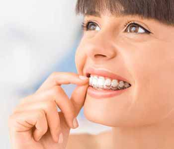 Women, men, and teens who are bothered by the appearance of misaligned or crooked teeth should consider Invisalign treatment in Fremont CA with Dr. Munira Lokhandwala at StarBrite Dental.