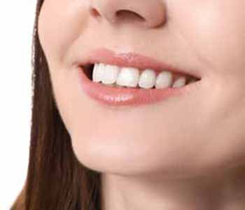 Image of a woman used invisalign after