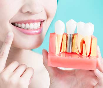 Lady displaying a dental implant structure