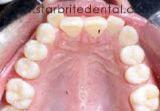 Before invisalign treatment