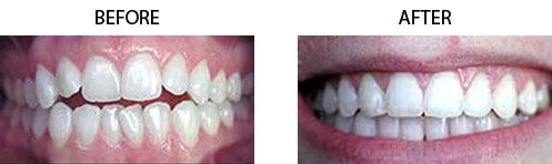 Six Month Braces Before/After 01