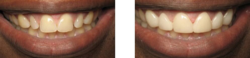 Porcelain Veneers Before/After 12