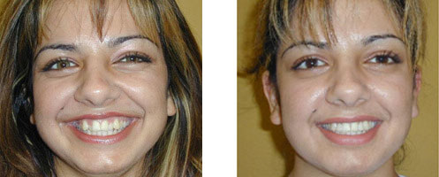 Porcelain Veneers Before/After 06