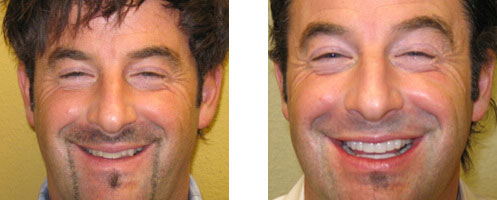 Porcelain Veneers Before/After 08