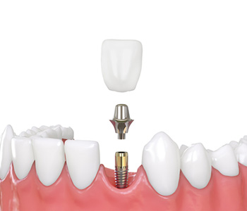 Dental Implants Clinic in Fremont CA area
